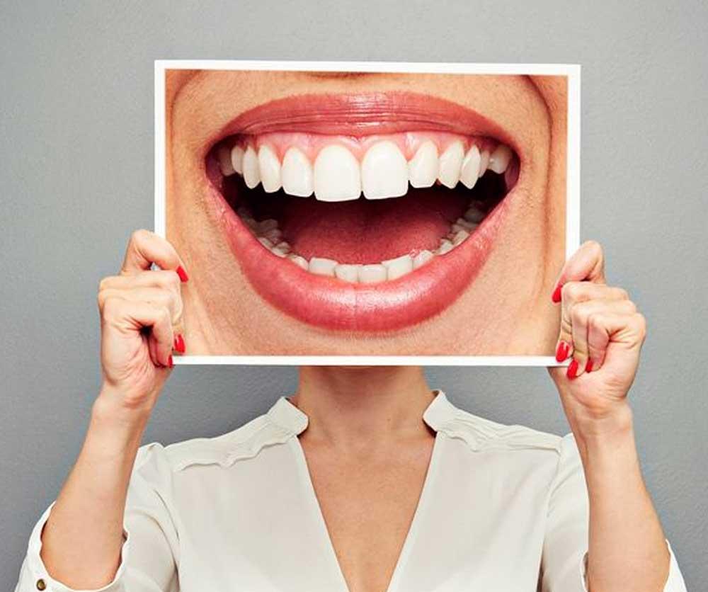 fotos dientes