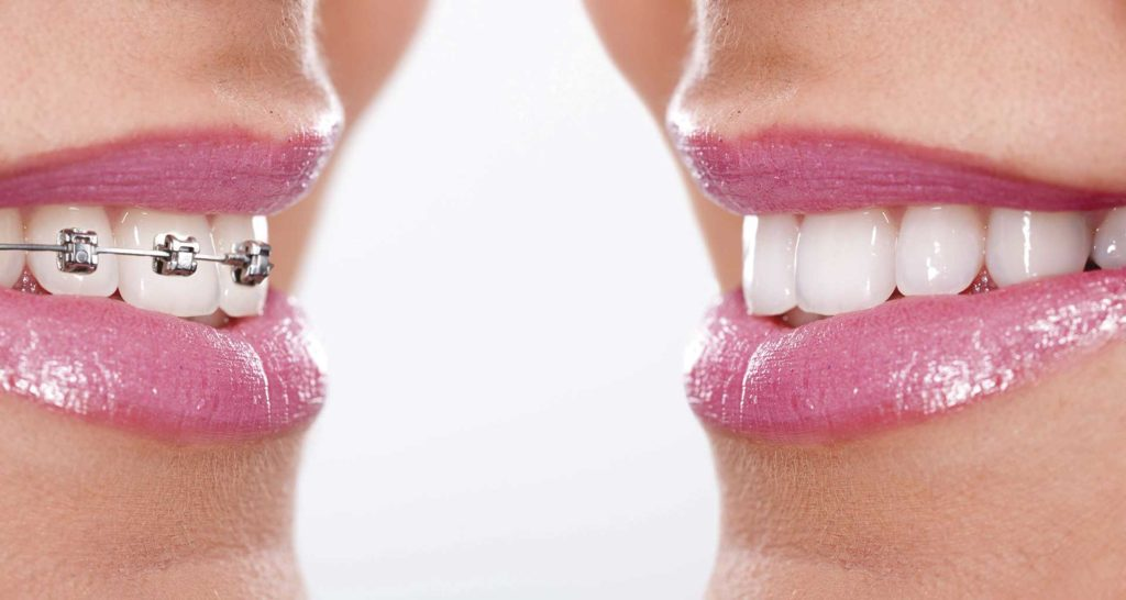 diferencia entre ortodoncia invisible y brackets