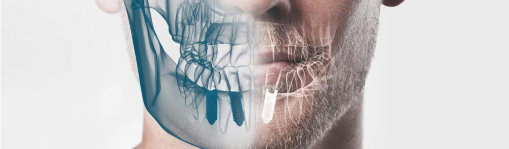 implantes-en-el-dia-madrid
